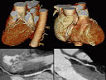 καρδιακή ανεπάρκεια, Επεμβατικός Καρδιολόγος, Χριστόδουλος Παπαδόπουλος