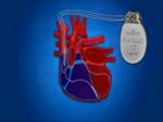 βηματοδότης, συχνές ερωτήσεις, Επεμβατικός Καρδιολόγος, Χριστόδουλος Παπαδόπουλος