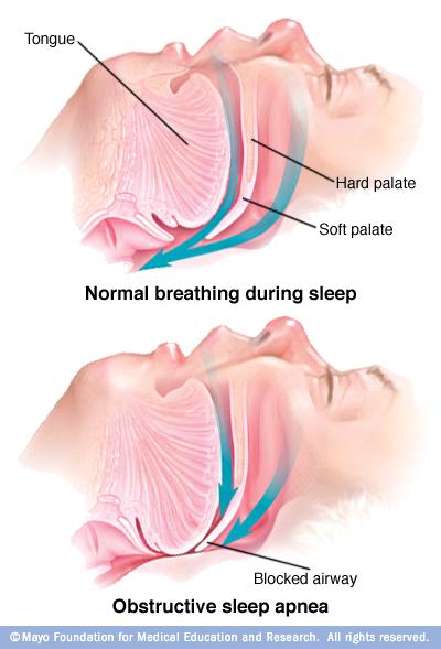 Σύνδρομο υπνικής άπνοιας