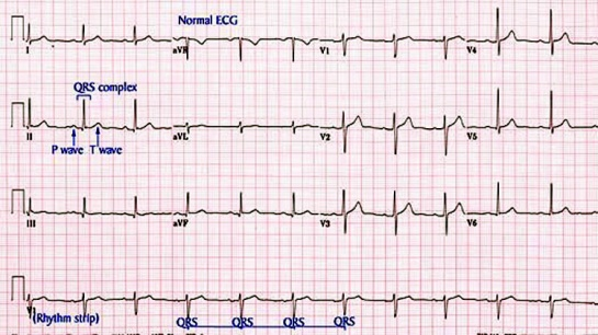 φυσιολογικό καρδιογράφημα - Χριστόδουλος Παπαδόπουλος Καρδιολόγος