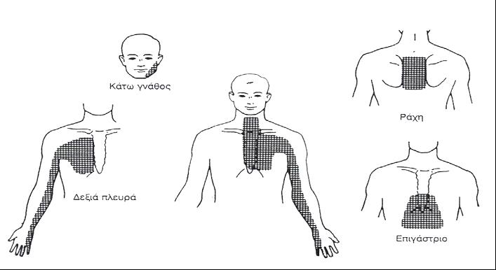 Αντανακλάσεις Στηθαγχικού Πόνου - Χριστόδουλος Παπαδόπουλος Καρδιολόγος