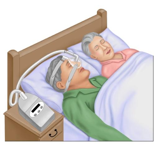 Σύνδρομο υπνικής άπνοιας - Δρ. Χριστόδουλος Παπαδόπουλος, Επεμβατικός Καρδιολόγος