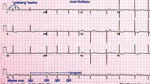 καρδιογράφημα με κολπική μαρμαρυγή - Χριστόδουλος Παπαδόπουλος Καρδιολόγος