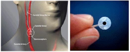 Θεραπεία της αρτηριακής υπέρτασης και της καρδιακής ανεπάρκειας